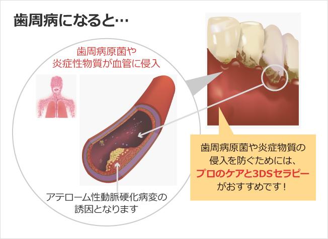 歯周病になると…歯周病原菌や炎症性物質が血管に侵入